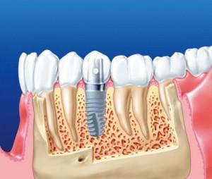 Photo: implant dans l'os de la mâchoire inférieure