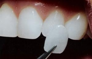 Photo: fixation du placage à une couronne dentaire