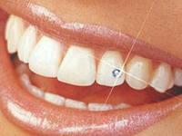 Photo: superposition décorative pour les dents