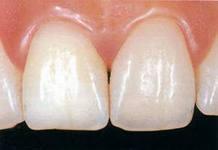 Photo: les dents avec des facettes semblent naturelles