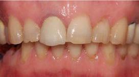 Photo: Dents avant l'installation des placages