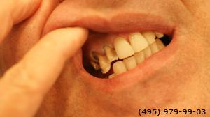 Photo: avant implantation dentaire