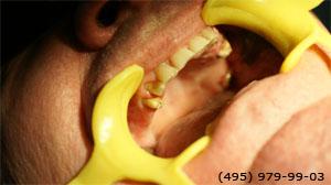 Photo: avant les implants dentaires