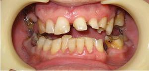 Photo: dents avant prothèses