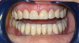Photo: dents après prothèses