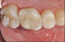 Photo: les languettes dentaires ressemblent à ceci