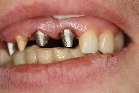 Photo: dents préparées