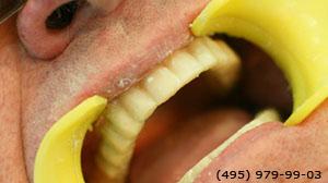 Photo: après implantation dentaire