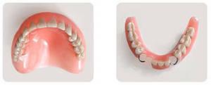 Photo: prothèses en nylon (à gauche) et en acrylique (à droite)