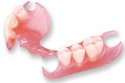Photo: prothèse de plaque en nylon partiellement amovible