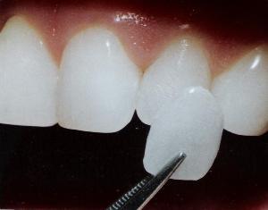 Photo: placage sur les dents de devant