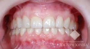 Photo: dents après l'installation des facettes