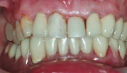 Photo: dents avant l'installation des facettes