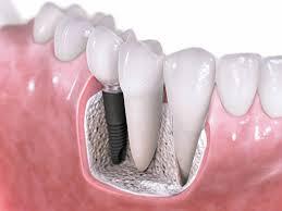 Photo: implantation dentaire