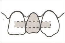 Photo: Schéma de la prothèse