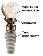 Photo: apparence de l'implant