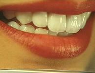 Photo: couronnes en zircone