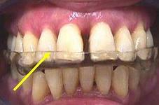 Photo: Traitement du grincement des dents
