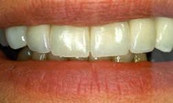 Photo: Esthétique des dents lors de la restauration par onglets