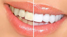 Photo: Dents avant et après l'installation des lumineers