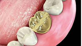 Photo: couronne d'or sur la dent