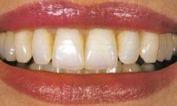 Photo: dents après l'installation d'une prothèse amovible