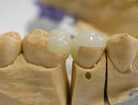 Photo: Création d'onglets dans le laboratoire