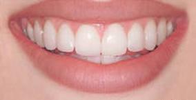 Photo: Voici à quoi ressemblent les lumineers sur leurs dents