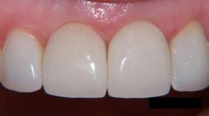 Photo: couronnes sur les dents de devant