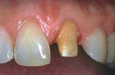 Photo: préparation d'une dent sous une couronne