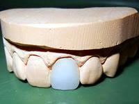 Photo: moulage des dents