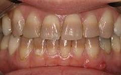 Photo: Dents de tétracycline