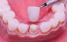 Photo: Installation d'une couronne sur une dent tournée