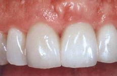 Photo: prothèses sans tourner les dents