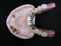 Photo: couronnes télescopiques coniques