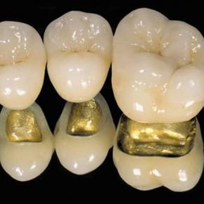 couronnes sur les dents