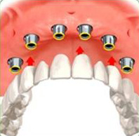 Photo: prothèse amovible conditionnellement sur la mâchoire supérieure
