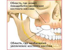 Photo: Atrophie osseuse au site d'implantation