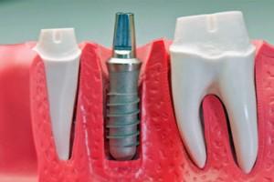 Photo: implant installé