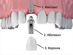 Photo: Structure de l'implant