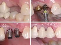 Photo: étapes d'implantation dentaire