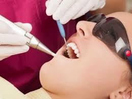 Photo: implantation laser