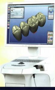 Photo: Simulation par ordinateur