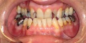 Photo: plusieurs défauts dentaires
