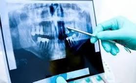 Photo: examen aux rayons X