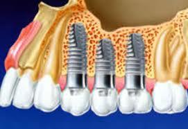 Photo: Trois implants sur la mâchoire supérieure