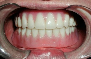 Photo: Prothèse dentaire
