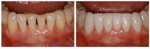 Photo: Avant et après restauration dentaire avec facettes
