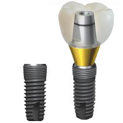 Foto: Implantiové implantáty