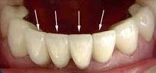 Photo: facettes sur les dents inférieures